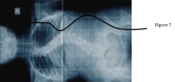 waveform-fig7